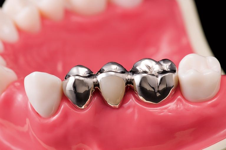 メタルフリー治療~お口の中から金属をなくしましょう~
