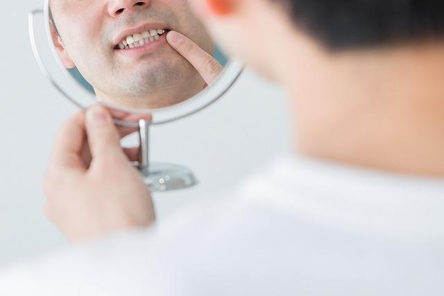 歯みがき指導を行なっています。