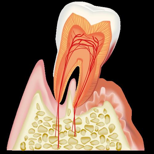 歯周病の原因について