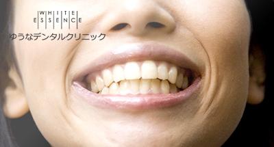 歯ぐきエステ